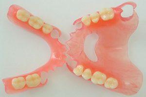 Нейлоновый-зубной-протез