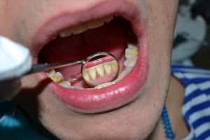 Снятие зубных отложений в Сумах. Снять камни