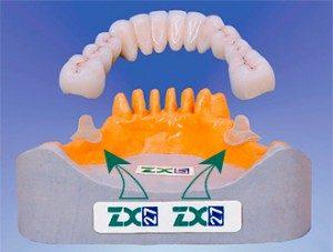 Zubnoe-protezirovanie-na-steklyannyih-oporah-v-g.-Sumyi-300x227