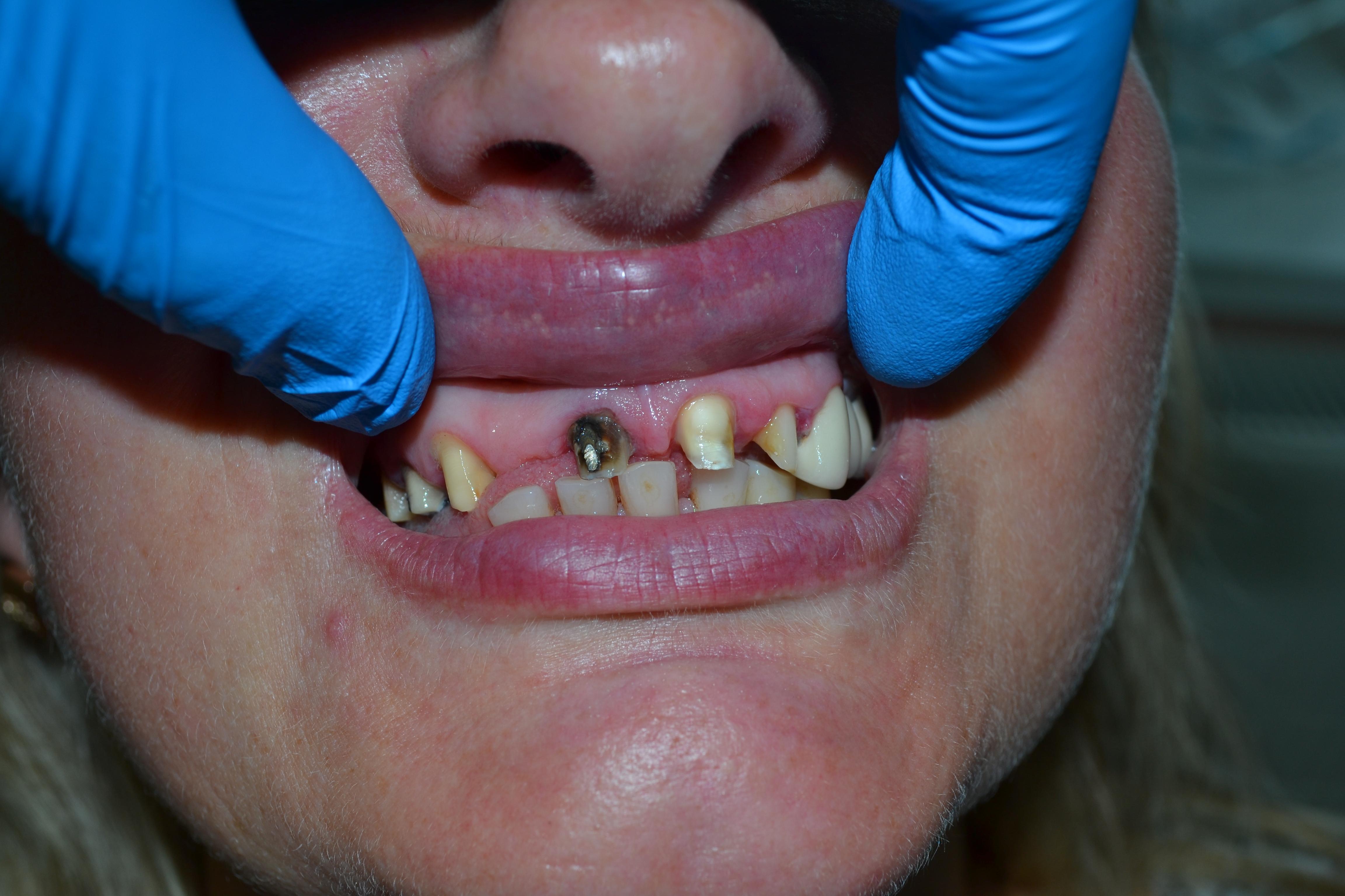 зубной протез виниры заказать через интернет магазин