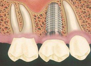 имплантация зубов Сумы