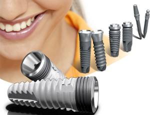 Форми зубних імплантатів