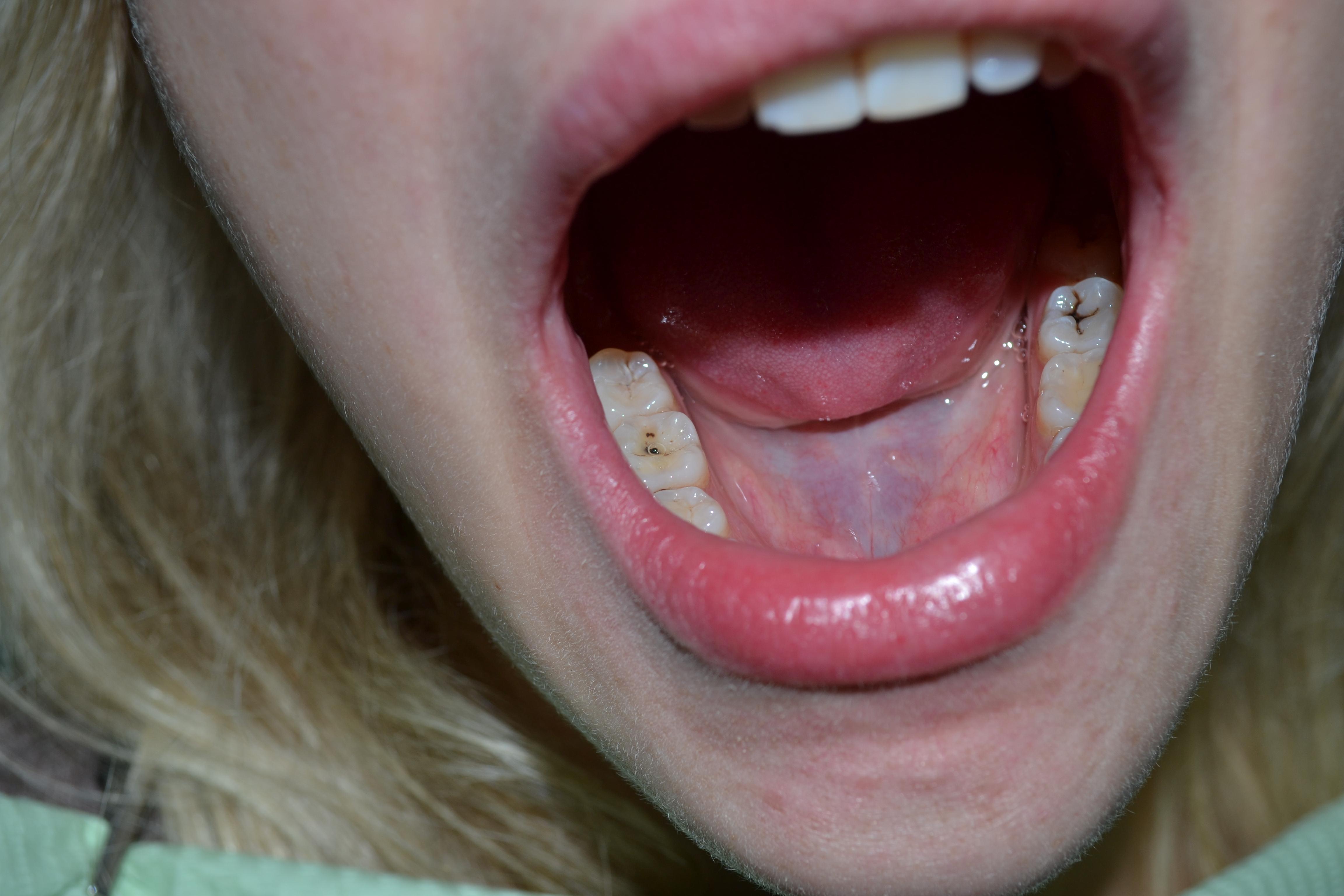 стоматологические виниры цена