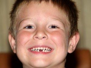 Удаление молочного зуба