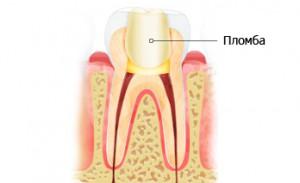 Зубна пломба