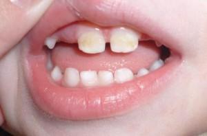 От пломб зубы потемнели