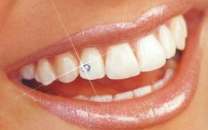Догляд за зубними прикрасами