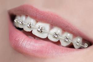Titanium braces