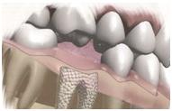 зубная хирургия