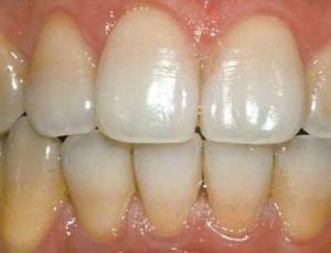 зубной-налет