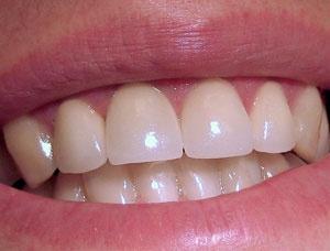 Реставрация зубов в г. Сумы