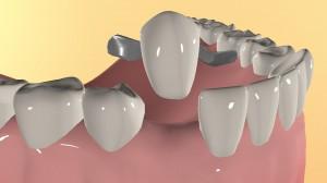 Адгезивные мостовидные протезы