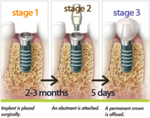 Stages of teeth implantation