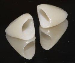 Керамические коронки