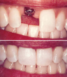 Single tooth implantation