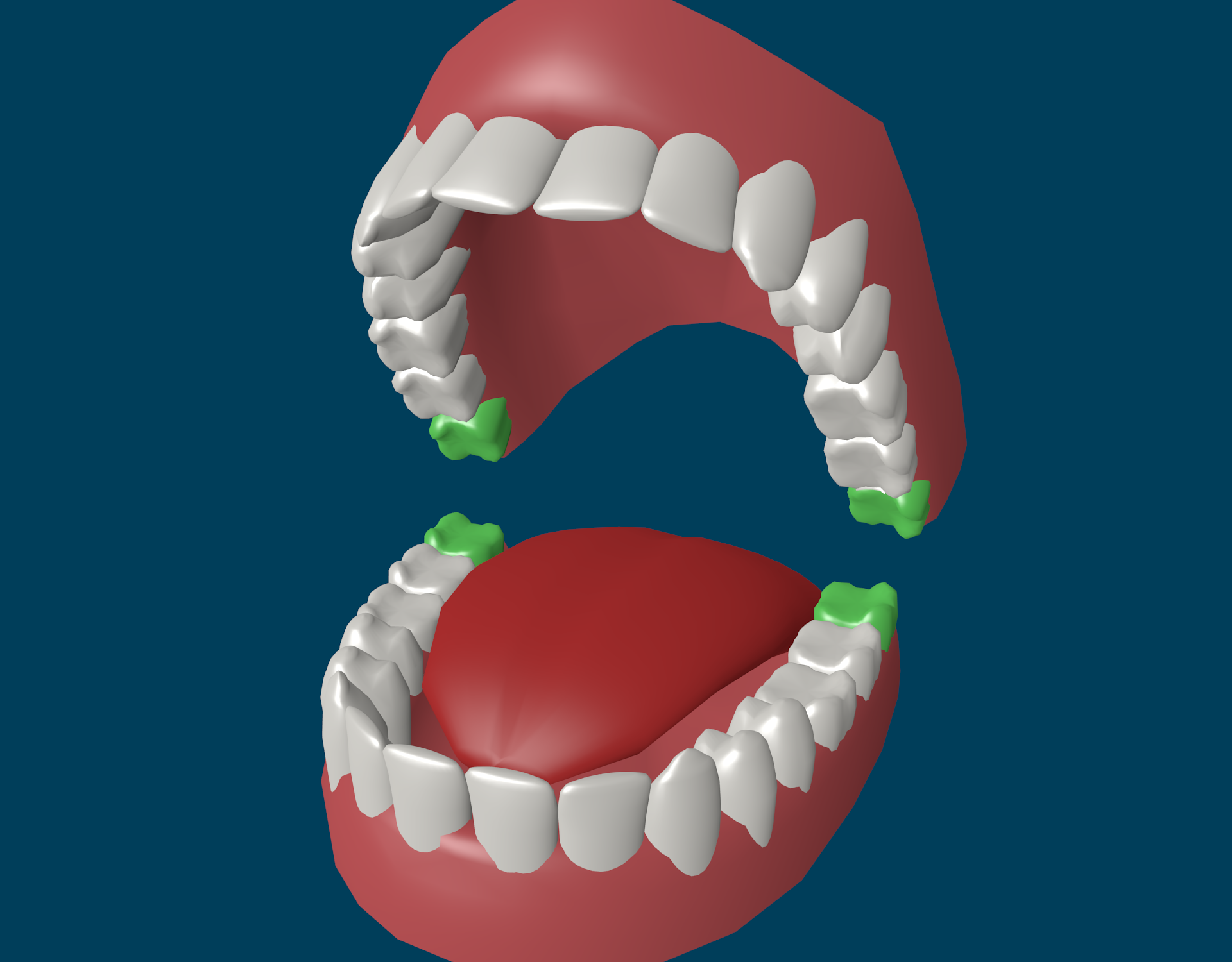 виниры на зубы видео установки