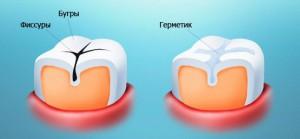 Зубные силанты