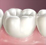 Депульпування зуба