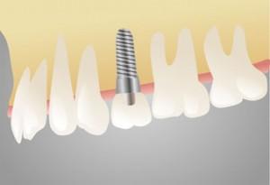 Різноманіття зубних імплантів
