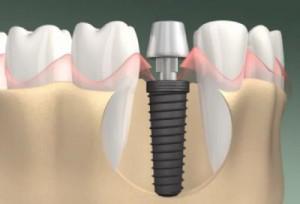 Сучасні методи імплантації зубів