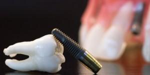 Що собою являє зубний імплантат