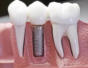 имплантация-зубов