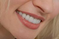 Умови красивої посмішки