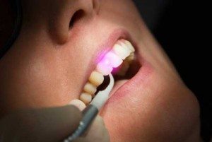 Применение лазера в стоматологии