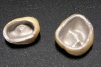 металлокерамические-коронки-сумы