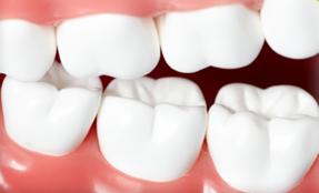 Тетрациклінові зуби