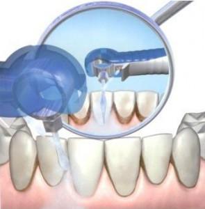 удалить -зубной-камень