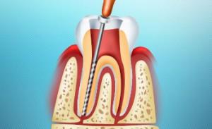 Депульпирование зуба