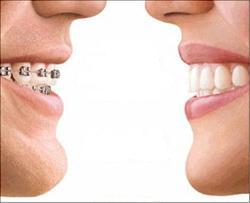 Как выровнять зубы