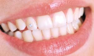 Красивые камни на зубах - особый шик