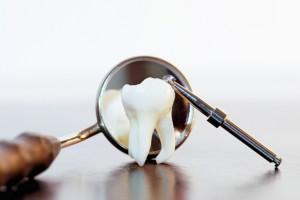Техника удаления зубов