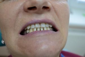 Кламмерный бюгельный протез нижней челюсти