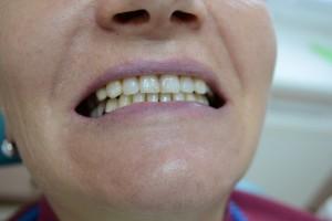 Классический бюгельный протез нижней челюсти