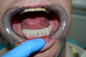 Коронки установлены в полости рта