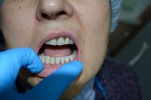 Нейлоновый протез нижней челюсти