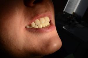 Диоксид циркония - ваша новая живая улыбка