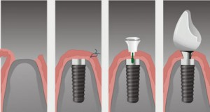 etapi-implantacii-zubov-1