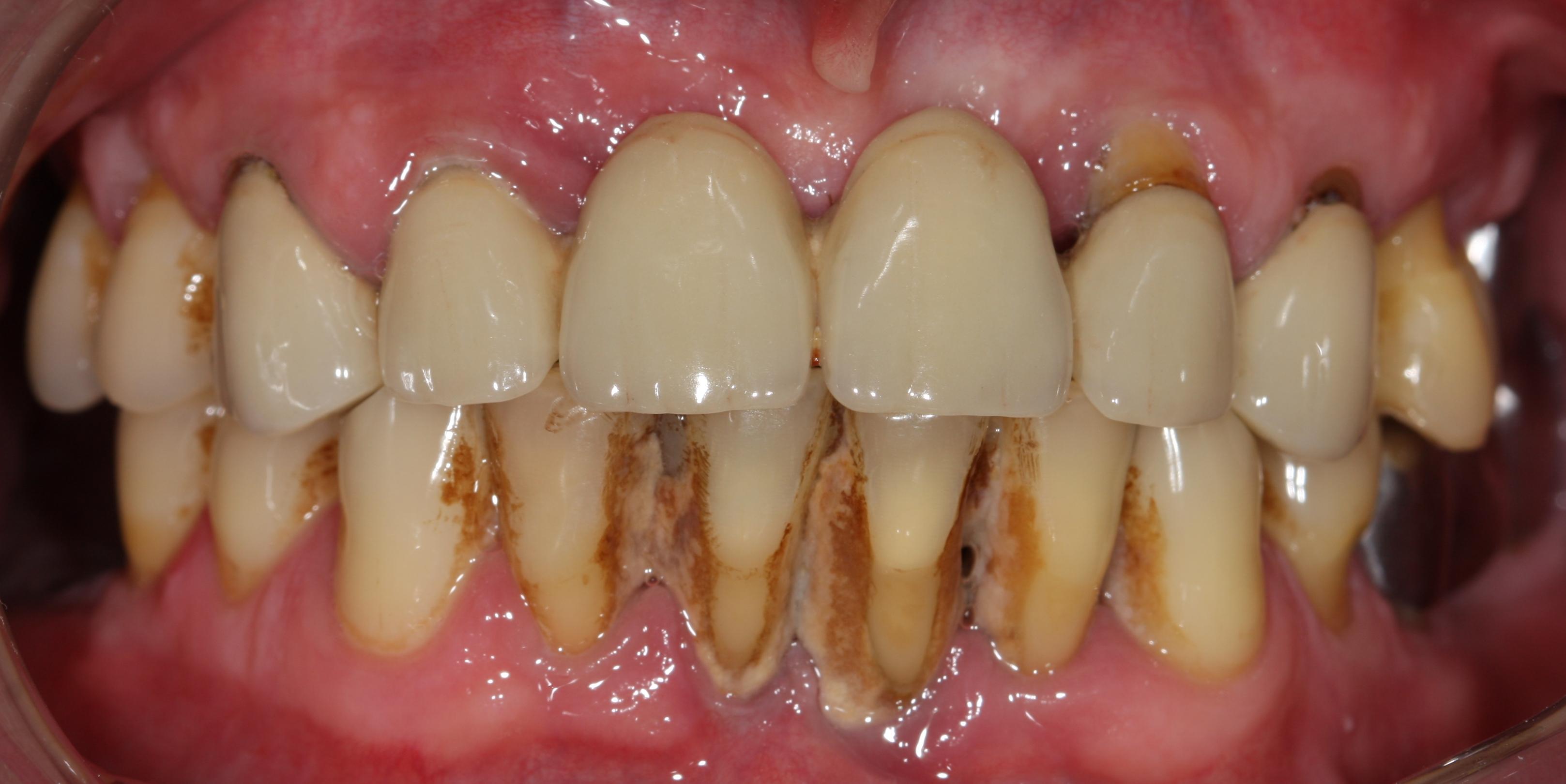 виниры на зубы фото цены москва