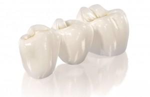 Металлокерамика в городе Сумы, протезирование зубов в г.Сумы, протезист в Сумах, стоматолог в г.Сумы, металлокерамические протезы в Сумах, металлокерамика