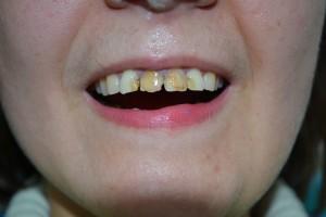 До эстетической реставрации зубов