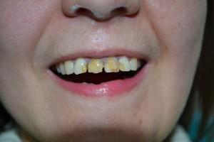 Измененные в цвете зубы с отдельно стоящими темными пломбами