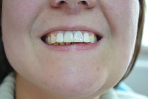 Выполнена эстетическая реставрация зубов
