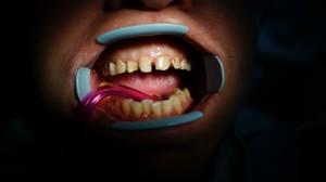 До реставрации зубов