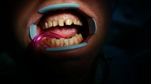 До восстановления зубов фотополимером