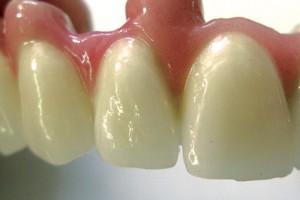 зубные протезы в городе Сумы