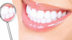 Весь комплекс профессионального отбеливания зубов